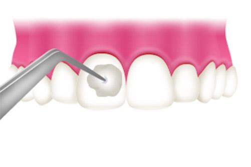 なな歯科クリニックで行うお子さんの予防歯科