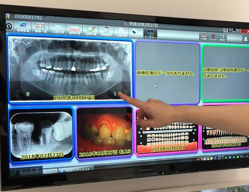 患者さんの口腔内をデータ蓄積し、管理します